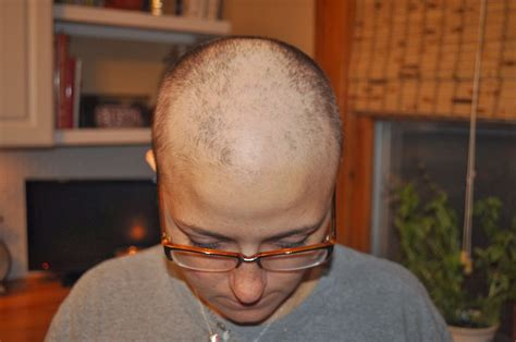 rate of hair growth after chemo rate of hair growth after chemo tips for hair growth