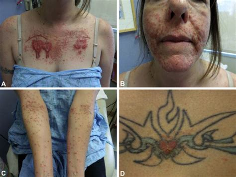 eczema and tattoos allergic reaction to ink and autoeczematization