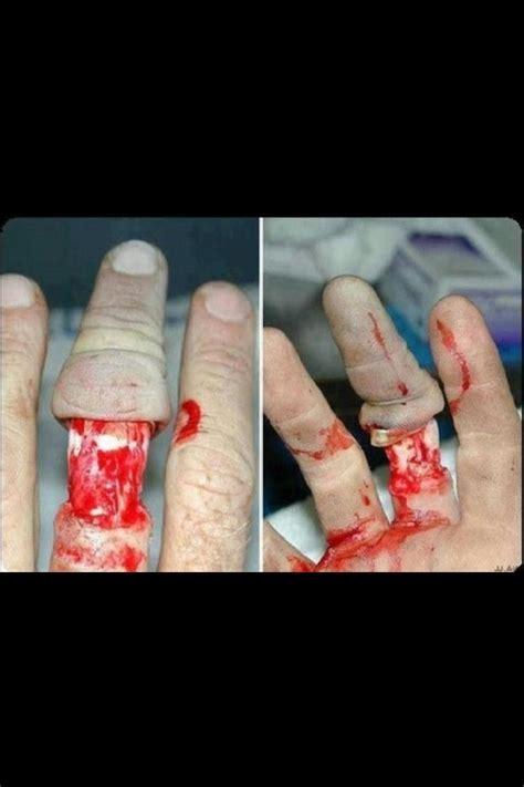 Izyaschnye wedding rings: Wedding ring injury