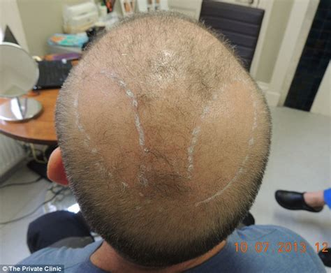transplant hair from chest to head good news for men now men can have hair transplants from