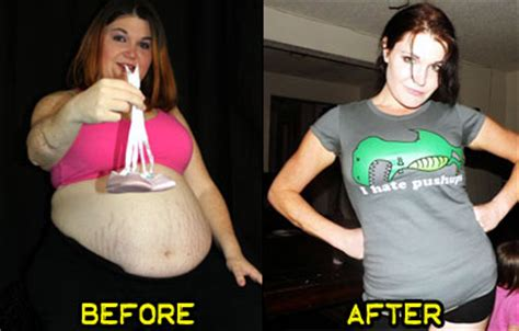 p weight loss weight loss stories prevost lost 130 pounds