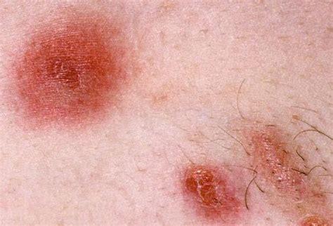 skin infection mrsa images