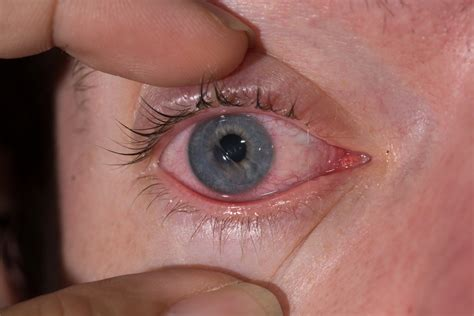symptoms of a scratched cornea eye center of