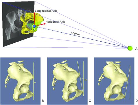 drrs   amounts  pelvic tilt  schematic view  drr  scientific