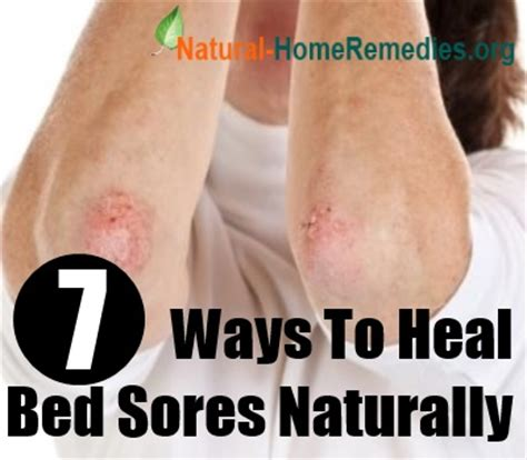 how to prevent bed sores 7 ways to heal bed sores naturally home remedies for bed