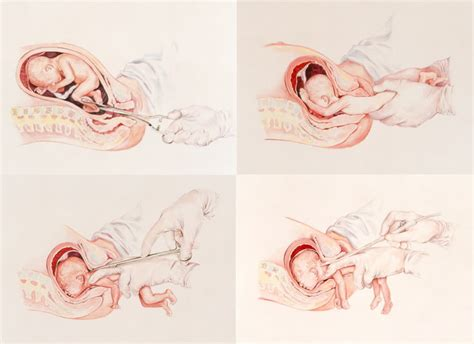 imagenes de niños que nacen pegados eligelavida 182 beb 233 s nacen vivos tras aborto por