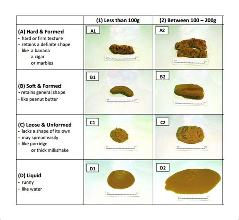 bowel color sle stool color chart teacheng us