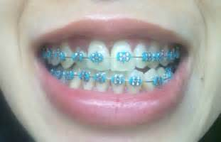 light blue braces search on the hunt