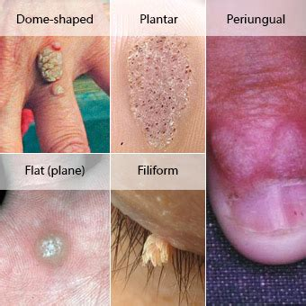 what causes planters warts moles warts skin tags removal types of warts and treatment