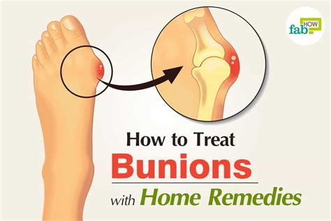 how to get rid of bunions with home remedies surgery free