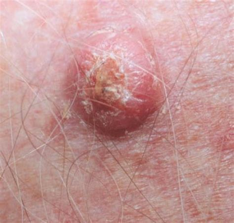 tumors pictures skin cancer pictures