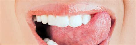Tanden Polijsten Kopen by Tanden Zelf Thuis Polijsten En Zo Gele Tanden Voorkomen