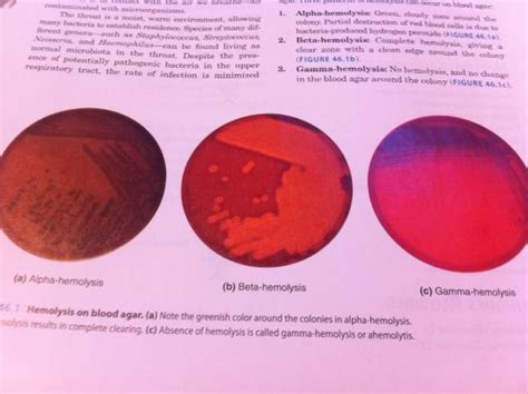 pattern lab organisms print microbiology lab exercise 46 bacteria of the