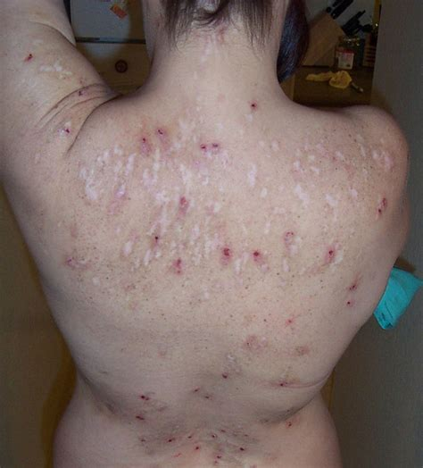 skin ulcer best 25 skin ulcer ideas on wound care wounds nursing and pressure