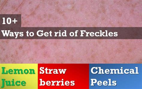 10 Ways To Get Rid Of Freckles by 10 Ways To Get Rid Of Freckles Skin Disease Remedies