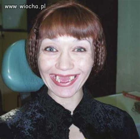 imagenes de negras sin dientes polish people having fun part 2 45 pics izismile com
