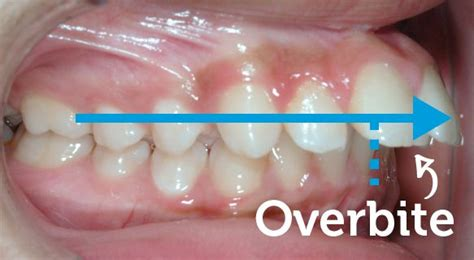with an overbite overbite corrected with braces 183 smile logic orthodontics 183 south brunswick nj