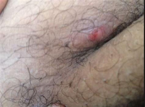 inner thigh ingrown hair 119 best bumps pimples acne zits scabs and sores