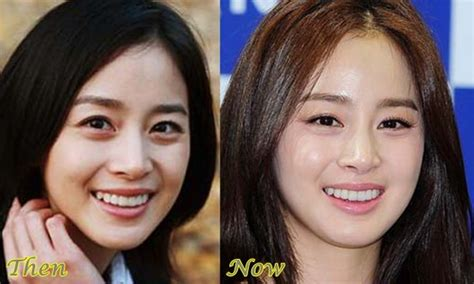 yoo ah in rich kim tae hee plastic surgery before and after korea