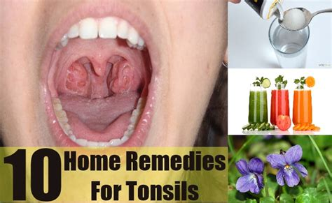 ten simple home remedies for tonsils treatment