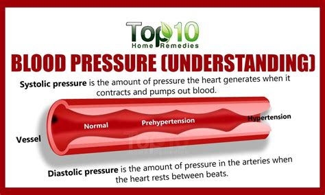 blood pressure swings causes home remedies for high blood pressure top 10 home remedies