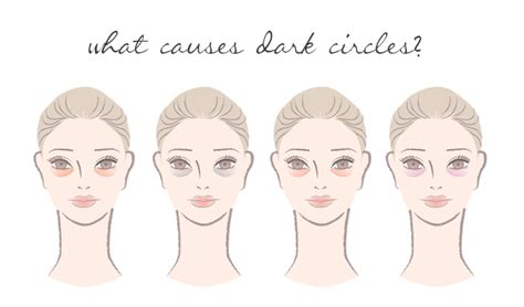 4 Things That Cause Your Eye Circles And Puffiness by What Causes Circles Your Yon Ka Skin