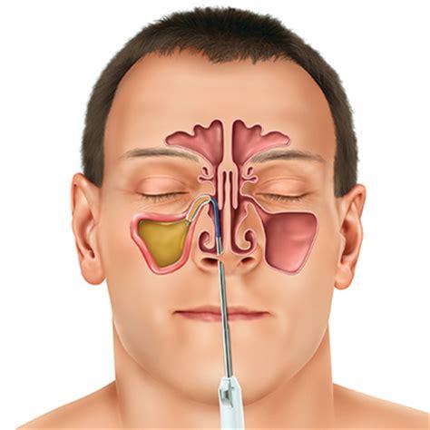 Sinus Cure new sinuplasty surgery uses sinus balloon to treat chronic