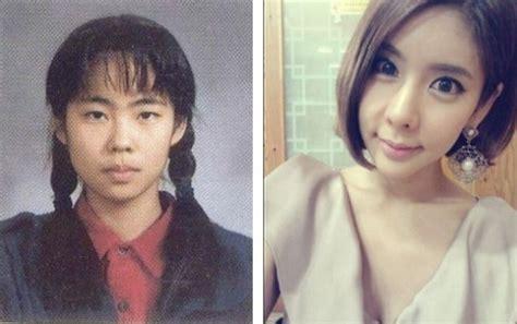 son ga in plastic surgery coreanas antes y despu 233 s de la cirug 237 a de ojos taringa