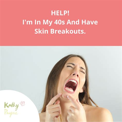 my has skin help i m in my 40s and skin breakouts kathy payne