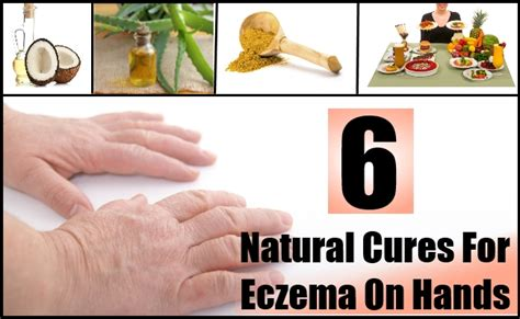 light therapy for eczema at home what is the treatment for hand eczema mccnsulting web