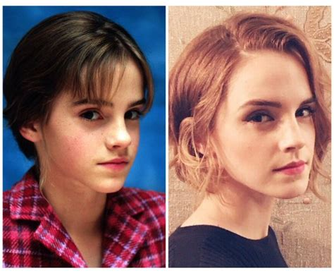 emma watson then and now emma now and then emma watson photo 39119087 fanpop