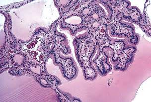 Colloid Goitre Pathology Outlines by Pathology Outlines Simple Goiter And Nontoxic Multinodular Goiter