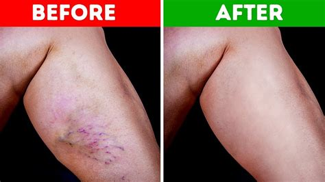 8 Ways To Get Rid Of Varicose Veins by 10 Ways To Get Rid Of Varicose Veins And Increase