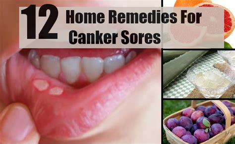 12 home remedies for canker sores treatments