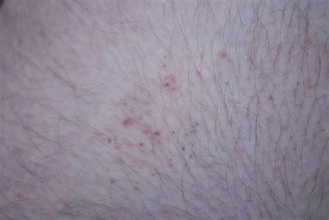 file bedbug bites on human thigh 2 jpg
