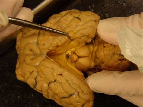 gland cleaning decalcifying the pineal gland the official resistance