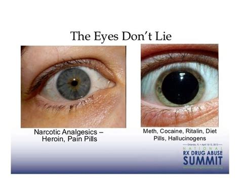 Eye Detox Symptoms by Can Drugs Cause Dilated Pupils I Dilated Pupils From