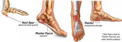 How to cure heel pain caused by a heel spur endtimewarning com