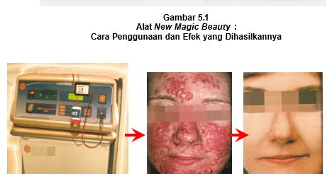 Alat Nu Skin 2017 jenis dan contoh alat non listrik perawatan kulit wajah dan alat listrik perawatan kulit wajah