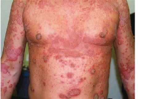 Salep Acyclovir Di Apotek salep obat gatal gatal pada kemaluan pria di apotik