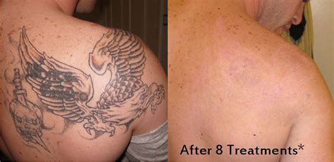 immediate tattoo removal ta removal services weight and solutions