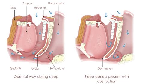 how does body comfort work what is a cpap machine how does cpap work