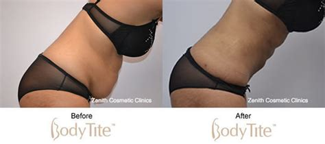 v back after c section bodytite gallery before after zenith cosmetic clinics
