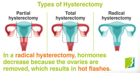 picture of teh difference between partial and full highlights hot flashes after a hysterectomy