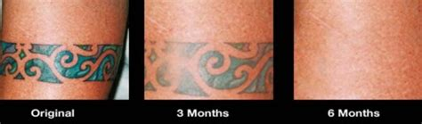 tattoo removal cream reviews pictures wrecking balm reviews and ratings