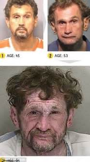 krokodil droge vorher nachher shocking before and after meth photos sharesloth