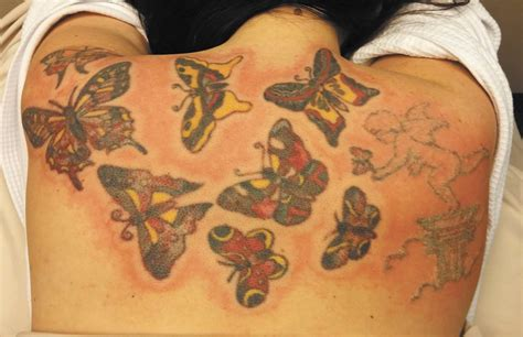 advanced tattoo removal not so permanent record home the pacific northwest