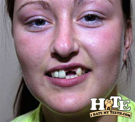 when do puppies teeth the worst the worst teeth 31 pics