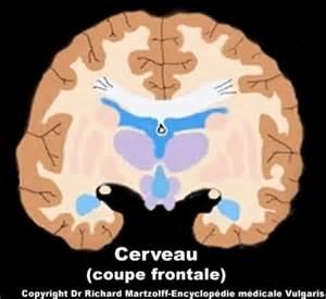 image photo cerveau coupe frontale sans l 233 gendes