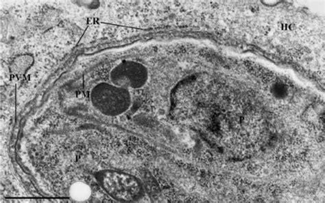 transmission electron microscopy analysis  skeletal